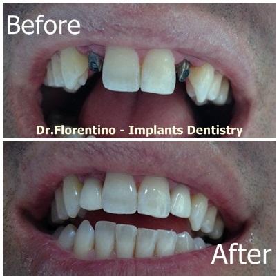 2 implants