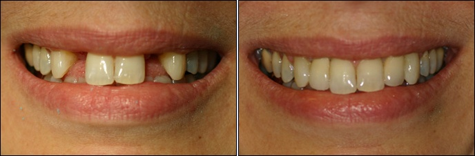 Dental Implants Case 17