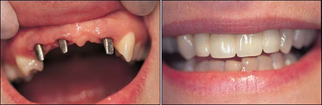 Dental Implants Case 20