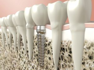Osseointegration of the implant