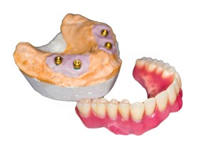 Cost of 4 Implant Upper Jaw removable overdenture