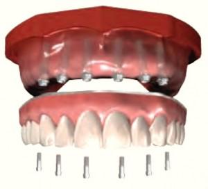 6 implant Upper Hybrid