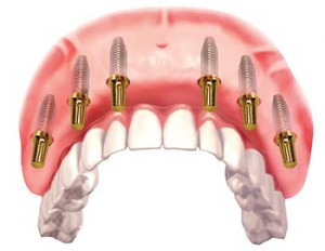 Cost of full top teeth dental implant bridge