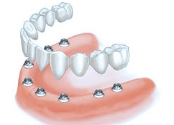 ost of 8 Implants with 10 to 12 unit Porcelain Bridge
