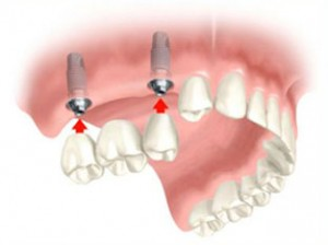 Cost of dental implants bridge 2 implants + 3 Unit Porcelain Bridge