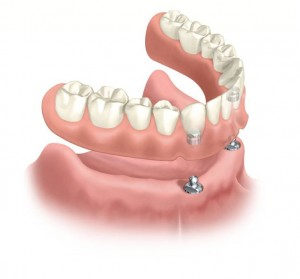 Cost of Dental Implant Overdenture - Dominican Republic