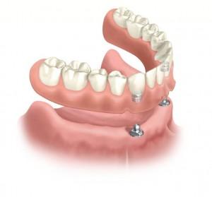 Dental Implant Overdenture - Dominican Republic